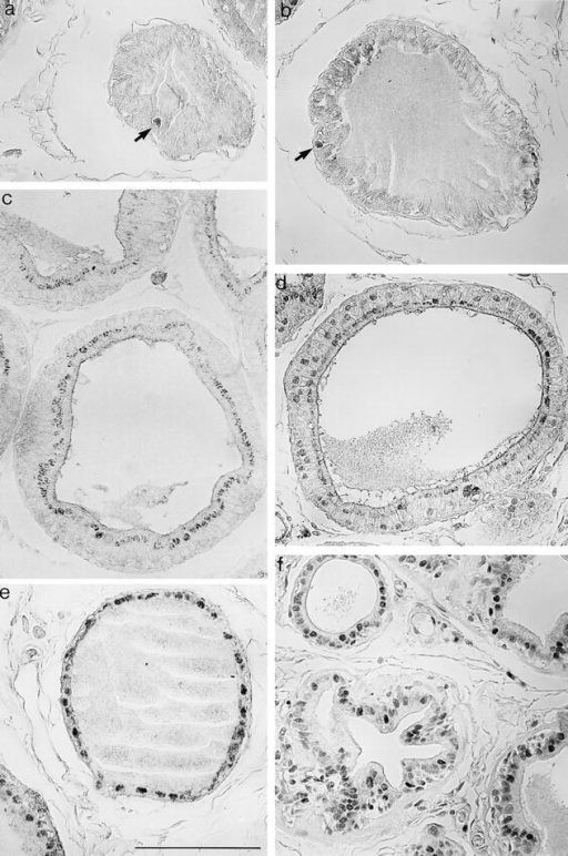 Immunohistochemical staining of rat ventral prostate with anti–DNase I. Rat ventral prostates were treated and stained with  polyclonal affinity-purified anti–DNase I as described in Materials and Methods. (a) Before castration: A single positively stained cell  (arrow) can be seen within the secretory epithelium. (b) 6 h after castration: Again, a single positively stained cell (arrow) can be seen.  The cytoplasm of some cells exhibits weak DNase I immunoreactivity. (c) 12 h after and (d) 3 d after castration; note that many, but not  all nuclei are positively stained. (e) 5 d after castration; note that most nuclei are positively stained. (f) 7 d after castration. Here the number of positively stained nuclei is decreased; many are DNase I negative. Identical magnification for all pictures. Bar, 100 μm.