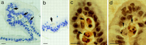 In situ hybridization of rat ventral prostates using DNase I–specific sense and antisense probes. Sections were treated as given  in Materials and Methods. Using the sense probe: (a) No staining. (b–g) Antisense probe. (b and c) Before; (d) 2 d after; (e and f) 3 d after; and (g) 5 d after castration. Note cytoplasmic positive reaction at supranuclear and apical position (blue) in (b–d). At day 3 (e and f),  a large number of apoptotic cells are detectable that exhibit strong staining of their fragmented nuclei, (arrows). At day 5, most nuclei  are negative; only weak cytoplasmic, supranuclear reaction is obtained. Bars, 10 μm.