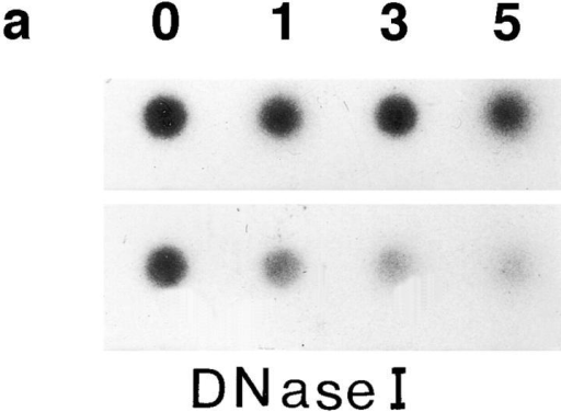 Dot and Northern  blots as well as RNase protection of a radioactively labeled probe specific for rat  parotid DNase I. Dot blots (a  and b) using total RNA purified from day 0, 1, 3, and 5  prostates at two dilutions. (a)  Hybridized with rat parotid  DNase I–specific cDNA and  (b) with a probe specific for  β-actin. Amount of RNA applied: Upper rows, 5 μg/dot;  lower rows, 1.25 μg/dot.  Northern blot (c) using 20 μg  of total RNA from day 0, 1,  3, and 5 prostates (lanes 0, 1, 3,  and 5) and 5 μg total RNA  from rat parotid gland (lane P)  hybridized with the DNase  I–specific cDNA. RNase protection (d) of a DNase I–specific  probe by DNase I–specific  mRNA present in the total  RNA of day 0, 1, 3, and 5  prostates. Total RNA prepared from rat prostates before and after castration  (100 μg each) and from rat  parotid gland (5 and 1 μg)  were hybridized with the labeled antisense probe as detailed in Materials and Methods. After ribonuclease treatment, the samples were run on 5% polyacrylamide/8 M urea gel and autoradiographed. Lane 0, before; lanes 1, 3, and 5, days 1, 3, and 5 after castration; lanes P and P′, RNA isolated from parotid gland, 5 μg and  1 μg, respectively, as positive control and to qualitatively compare the concentrations of DNase I–specific mRNA in prostate to parotid  gland; lane M, 5 × 103 cpm of antisense probe as standard (651 bp).