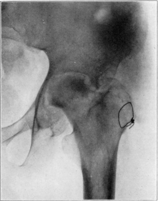 Case 1. Two hundred and fifty days after operation. Head extensively reduced in density from invasion and replacement from the living bone of base of neck.