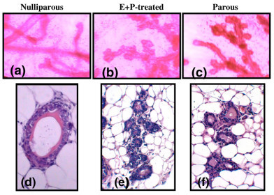 Changes in mammary gland architecture induced by estrogen and progesterone. Tissues from mice that were iparous (a, d), E+P-treated (b, e), and parous (c, f) were examined using whole mounts (a-c) and 4-μm sections stained with hematoxylin and eosin (d-f). Magnifications, × 4 (a-c) and × 100 (d-f). E+P, estrogen and progesterone.
