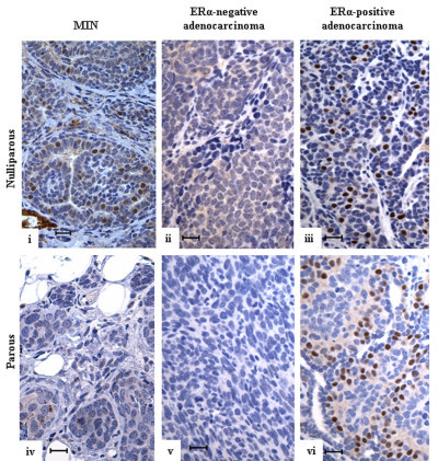 Estrogen receptor-alpha expression in spontaneous mammary tumors in Trp53+/- mice. Spontaneous mammary tumors from iparous (i-iii) and parous (iv-vi) BALB/c-Trp53+/- mice were stained with anti-ERα antibodies. Representative sections are shown for mammary intra-epithelial neoplasias (MIN) and adenocarcinomas that differ in ERα status. The tissues from iparous mice include (i) ERα+ MIN, (ii) ERα- adenocarcinoma, and (iii) ERα+ adenocarcinoma. The tissues from parous mice include (iv) ERα- MIN, (v) ERα- adenocarcinoma, and (vi) ERα+ adenocarcinoma. Scale bar = 20 μm. ERα, estrogen receptor-alpha.