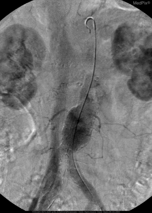 Flush abdominal aortagram demonstrates abnormal early opacification of the IVC.