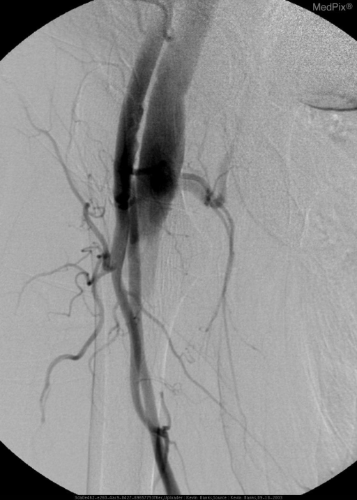 Runoff of the proximal RLE demonstrates an abnormal vascular communication between the right profunda femoris artery and femoral vein.