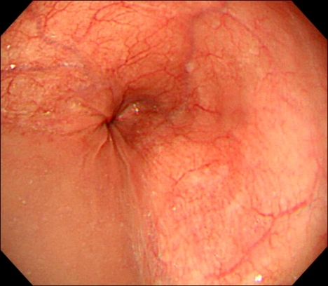 Upper endoscopy. Retained fluid is found in the distal ...