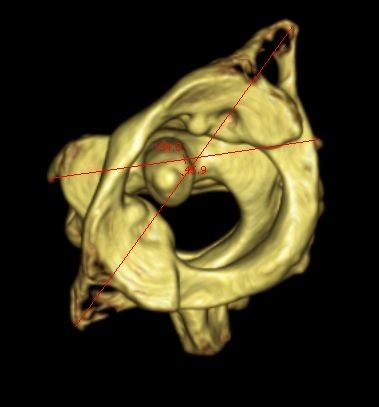 Atlantoaxial computed tomography scan. Atlantoaxial rotation of 46° to the left.