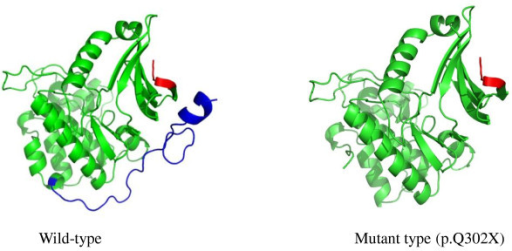 Structural modeling of the wild-type and mutant proteins. The STK11 protein is mainly comprised of three major domains: the N-terminal non-catalytic domain in red, the catalytic kinase domain in green, and the C-terminal non-catalytic regulatory domain in blue. The mutation, p.Q302X, leads to partial loss of the kinase domain and complete loss of the C-terminal end of the α-helix.