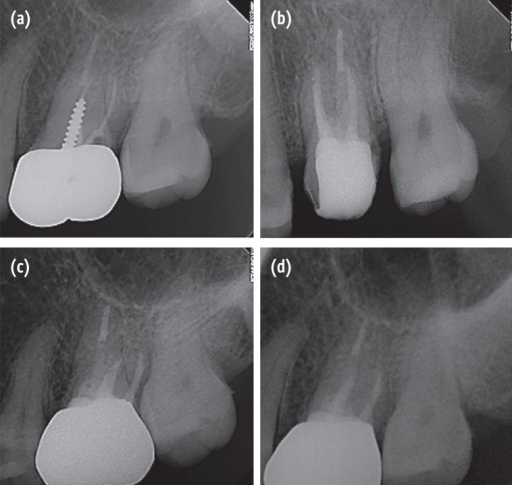 (a) Periapical radiography of tooth #26 at initial presentation; (b) Completion of root canal retreatment; (c) 9-month follow-up radiography; (d) 10-month follow-up radiography.