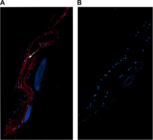 Immunohistochemical localization of Hco-gal-m protein in cryostal section ofH. contortus. Hco-gal-m protein was detected by the indirect immunofluorescence method using second antibody Goat Anti-Rat IgG H&L (Alexa Fluor® 647). The section was counterstained with DAPI to show DNA. (A) Hco-gal-m is localized in the luminal surface of the adult worm's gut. (B) No labeling was observed in negative control. The arrow indicates the gut brush border. Original magnifications: ×400.