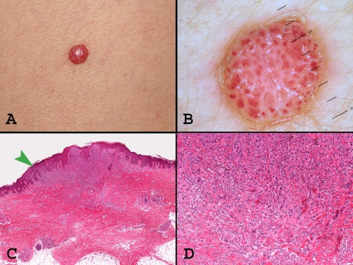 A dome-shaped red lesion with a light verrucous surface (A) located on the back in a 7-year-old girl. Dermoscopy (B) suggests that the lesion is probably not a viral wart, because of the presence of a thick reticular depigmentation surrounding linear irregular vessels; some small white scales and a peripheral light brown symmetric pigmentation are visible as well. Histopathologically, the lesion is very atypical, with an asymmetric involvement of the epidermis (C, arrow) and a deep dermal component made by epitheloid (spitzoid) cells with a confluent pleomorphomism and a larger size than the overlying melanocytes (D). Histopathological diagnosis: Spitzoid melanoma, according to Ackerman's classification [8]; Spitz tumor with atypical features, according to Banhill's classification, 2006 [19]. Our histopathological diagnosis was (atypical) Spitz tumor. In this case, a sentinel node biopsy disclosed few parenchymal aggregates of pleomorphic melanocytes; no completion lymph node dissection was performed. The patient is alive with no evidence of disease after six years. (Copyright: ©2015 Ferrara et al.)