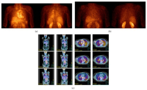99mTc-Infliximab scintigraphy of a sarcoidosis patient (patient 3/F) acquired at 6 h (anterior and posterior views (a)) and at 24 h (anterior and posterior views (b)) showing a moderate and diffuse uptake in the lung parenchyma. [18F]-FDG PET/CT images of the same patient showing a focal/hyleal uptake (coronal and transaxial sections (c)).