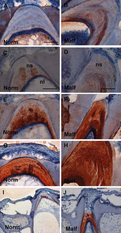 Immunostaining of different GAG types in longitudinal sections of normal and malformed vertebrae from 15 g salmon. Left panel shows normal vertebrae versus right panel shows malformed vertebrae. a, b KS was found mainly in the lumen of the notochord in normal and malformed, but also appeared strongly in the notochordal sheath in malformed. c, d C-6-S had distinct band with globular structures in the notochordal sheath of normal vertebrae, but these were lost in malformed vertebrae. e, f C-0-S was found closer to the lumen in the notochordal sheath of normal vertebrae in contrast to a more widespread distribution in malformed where this gradient was disturbed. g, h C-4-S/DS showed lamellar structures in the cranio-caudal direction of the notochordal sheath of normal vertebrae, but in malformed, these structures were ruptured and stretched more in the dorsoventral direction. i, j C-4-S showed weak staining in the notochordal sheath of normal vertebrae, but stained more intensively and in a spotted pattern in malformed vertebrae. Scale bar 100 µm; nl notochord lumen, ns notochordal sheath, Norm normal, Malf malformed