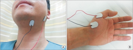 Stimulation sites included the following: for group A, to stimulate a specific dysphagia site, a hot spot was obtained from motor evoked potentials (MEP) of the suprahyoid muscle (A); for group B, to stimulate an interconnected remote site related to dysphagia, a hot spot was obtained from MEP of the abductor pollicis brevis muscle (B).