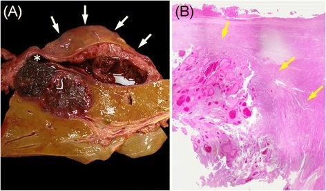 Cross-sectional and histologic findings of the liver at autopsy. The ruptured region (white asterisk) and subcapsular hematoma surrounding the liver (white arrow) (a). The metastatic tumor is well demarcated by a fibrous capsule (yellow arrow) (hematoxylin-eosin stain, ×40) (b)