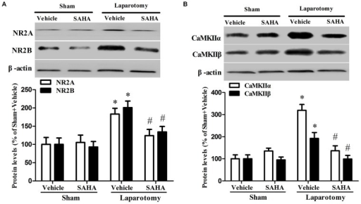 Impact of SAHA treatment on protein expressions of NR2A, NR2B, CaMKIIα, and CaMKIIβ in the 16-month old mice after surgery. (A) The protein levels of NR2A, NR2B were determined by western blot. Representative image is shown at the top and quantitative result at the bottom. Data are presented as the mean ± S.E.M. (n = 3). (B) The protein levels of CaMKIIα and CaMKIIβ. Representative image is shown at the top and quantitative result at the bottom. Data are presented as the mean ± S.E.M. (n = 3). *p < 0.05 compared with the Sham + Vehicle group; #p < 0.05 compared with the Laparotomy + Vehicle group.