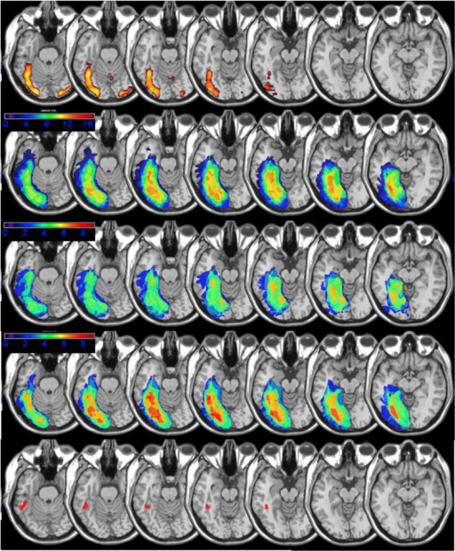 Row 1: fMRI activation during a reading task in 15 normal subjects (words – checkerboards, p < .05; FDR) Row 2: lesion overlap maps for all 17 patients included in the study with scans; Row 3: lesion overlap maps for the eight patients with the mildest reading impairment; Row 4: lesion overlap maps for the nine patients with the most severe impairment; and Row 5: Lesion map for patient 125, with a severe reading impairment, showing a small lesion confined to the left fusiform gyrus/occipito-temporal sulcus. .The axial slices of the MNI template brain in MRIcron have been rotated −15° from the AC-PC line in order to display the entire posterior-anterior course of the fusiform gyrus.