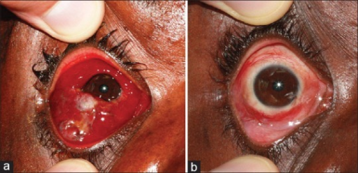 (a) Kaposi sarcoma infiltration of bulbar and palpebral conjunctiva before treatment. (b) Six months after 4 intralesional bleomycin treatments. Slight injection but no tumor visible biomicroscopically