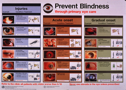 <p>Multicolor poster with black and red lettering.  Title at top of poster.  Visual images are color photo reproductions depicting eye injuries and eye diseases that can lead to blindness, as well as illustrations of several therapeutic measures.  These include putting drops in the eye, washing the eye, using a patch, and sending the patient to a clinic.  Additional text outlines care appropriate for each condition.  Note and publisher and sponsor information at bottom of poster.</p>