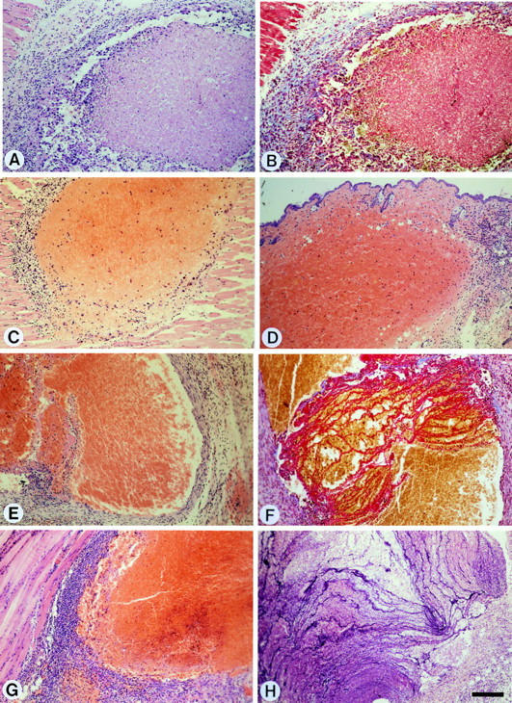 Morphology of End. cell–induced tumors in wild-type and mutant adult mice. (A) s1-induced subcutaneous tumor in a wildtype mouse after 3 d; B is the consecutive section stained with the Lendrum technique: note the absence of fibrin deposition, (C) b3- induced subcutaneous tumor in a tPA−/− mouse, and (D) s2-induced tumor in a uPA−/− mouse after 3 d. Note the presence of a central hemorrhagic/necrotic core surrounded by extensive peritumoral host cell recruitment (including inflammatory cells) and neovascularization in all sections (A–D) irrespective of cell or mouse genotype at this early time point (3 d). (E) ut1-induced tumor in a wild-type  mouse after 40–45 d. (F) The consecutive section from the same tumor (which has been rotated slightly): staining with the Lendrum  technique reveals extensive fibrin deposition, (G) s2-induced tumor in a uPA−/− mouse after 27 d, (H) s2-induced tumor in a utPA−/−  mouse after 30 d; staining with the PTAH technique reveals extensive fibrin deposition. Note the persistence of peritumoral host cell recruitment in all sections (E–H) irrespective of cell or mouse genotype at this late time point (27–45 d). All sections stained with hematoxylin and eosin unless otherwise stated. Bar, 170 μm.