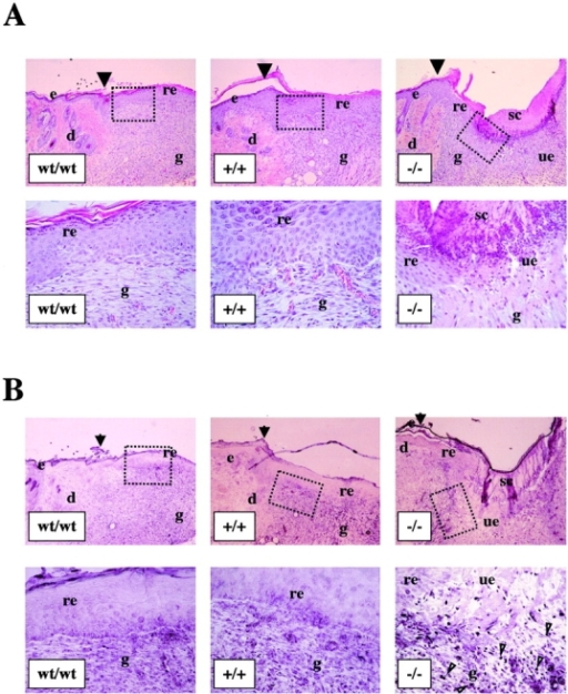 "EDA−/−skin wounds at day 7 after wounding show abnormal healing and increased number of BrdU-positive cells. (A) Full thickness cutaneous wounds of control (EDAwt/wt, n = 8) and mutant mice (EDA+/+ and EDA−/−, n = 8 and 9, respectively) mice were analyzed at 7 d after wounding. Representative sections are shown. The black arrowheads indicate the wound edges. Abbreviations are as described in Fig. 5. The ulcerated epithelium observed in the EDA−/− wound is indicated as ""ue."" The experiment was repeated three times with similar results. Wound sections of three independent experiments (eight mice per genotype in each experiments) were microscopically scored for the presence of ulcerative processes at day 7 after wounding. The fraction of ulcerated wounds of the EDA−/− mice was statistically significant different from that of EDAwt/wt and EDA+/+ mice (63 and 22% for EDA−/− and EDAwt/wt, respectively; P < 0.0002 for EDA−/− vs. EDAwt/wt by both the Fisher Exact test and the χ2 test). There were no differences between the EDAwt/wt and EDA+/+ scores). (B) BrdU labeling shows an increased number of replicating cells in the EDA−/− wounds. Serial sections of the same wounds seen in A were incubated with an anti-BrdU mAb. The count of several microscopical fields showed that there are at least 10 times more BrdU-positive nuclei in the area below the newly formed epidermis in the EDA−/− wounds when compared with EDAwt/wt or EDA+/+ wounds. A representative field is shown. More than 50 positive nuclei are observed in the EDA−/− wound (bottom right), whereas less than five positive nuclei are observed in the case of EDAwt/wt or EDA+/+ samples (bottom left and center, respectively). Illustrative BrdU-labeled nuclei are indicated by white triangles. The black arrows indicate the wound edges."