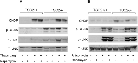 Effects of mTORC1 on ER stress-dependent and -independent JNK activation.TSC2-deficient and wild-type mouse embryonic fibroblasts were treated with 300 nmol/l thapsigargin for 24 h (A) or with 200 nmol/l anisomycin for 30 min (B) with and without 50 nmol/l rapamycin, as described under Materials and Methods. JNK and c-Jun phosphorylation were analyzed by Western blot. Representative gels of 3 individual experiments showing CHOP, phoshpo-c-Jun, total and phospho-JNK are presented.