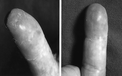 Painful erythematous swelling on the left thumb and distal phalanx of the right middle finger.