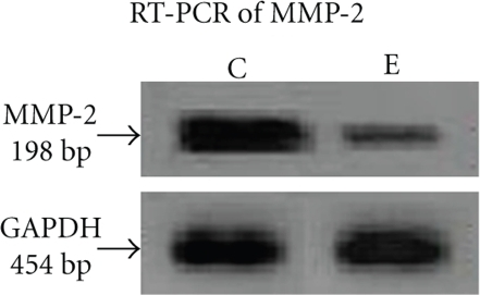 RT-PCR of MMP-2: MCF-7 (300,000 cells/1.5 mL) cells were grown in absence (lane C) and in presence of 30 μM ATRA (lane E) for 24 hours in SFCM. Cells were washed in PBS and total RNA were extracted (RNAqueous for PCR, Ambion). Two-step RT-PCR (Retroscript, Ambion) was done with equal amounts of total RNA using specific primers for MMP-2 PCR. 20 μL of each PCR products were run on a 2.5% agarose gel and bands visualised under UV. GAPDH primers were used to confirm equal loading. Documentation was done in Gel Doc (Image Master VDS, Pharmacia, Biotech).