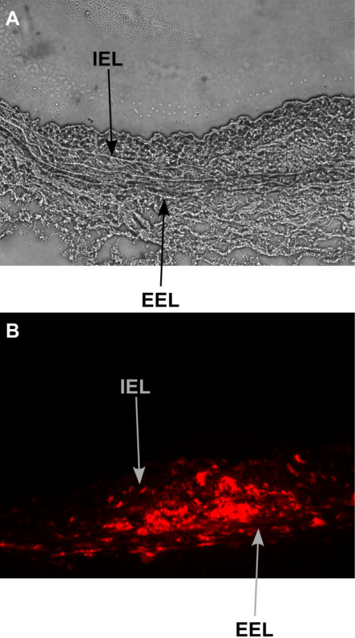 Tracking of delivered cells. Light microscopy cross section (20×) showing neointima formation in immunodeficient rat carotid 4 weeks after balloon injury (A). CM-Dil-labeled human CD34+ cells stain red under fluorescent microscope (20×) within intima and media of carotid 4 weeks after balloon injury (B). IEL = Internal elastic lamina, EEL = external elastic lamina.