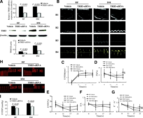 TRB3 gene therapy improves cardiac function in diabetic (DM) rats. A: Relative mRNA expression and protein content of myocardial TRB3 in gene-silencing groups. B: Representative echocardiograms. C–G: Sequential evaluations of left ventricular end diastolic diameter (LVEDd) (C), FS (D), LVEF (E), E/A (F), and E′/A′ (G). H: Pressure curves of cardiac catheterization. I: Analysis of LVEDP with TRB3-siRNA silencing. Data are mean ± SEM; n = 7–10 per group. §P < 0.05, §§P < 0.01 vs. DM + vehicle. w, weeks. (A high-quality digital representation of this figure is available in the online issue.)