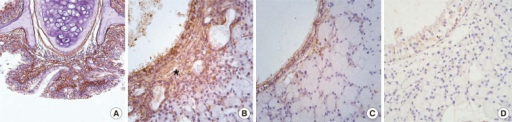 Periostin immunohistochemistry. Images show the nasal respiratory mucosa after 3 months of allergen challenge. (A) OVA group, original magnification, ×20. (B) OVA group, original magnification, ×400. (C) PBS group, original magnification, ×400. (D) KO group, original magnification, ×400. Periostin was highly expressed in the subepithelial area in the OVA group (asterisk in B). However, it was less expressed in the same area of the PBS group, and no periostin expression was observed in the KO group.PBS, phosphate buffered saline; OVA, ovalbumin; KO, knockout.