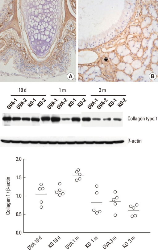 Expression of type I collagen in the KO group visualized by immunohistochemistry. (A) Original magnification, ×20. (B) Original magnification, ×400. Type I collagen was identified in the subepithelial tissue (asterisk in B) of the nasal mucosa, regardless of periostin deficiency. The graph depicts the ratio of collagen type I to β-actin from nasal tissue lysates. The KO group showed a trend toward decreased type I collagen expression after 1 and 3 months of allergen challenge compared to the OVA group by immunoblotting. Two representative results of immunoblotting (n=5) over time are shown.OVA, ovalbumin; KO, knockout.