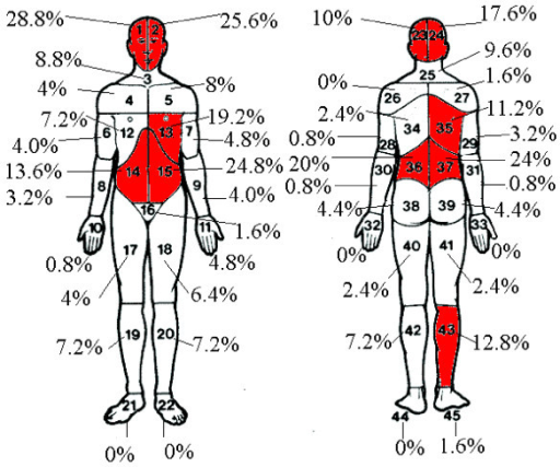Pain Locations On Body Diagram