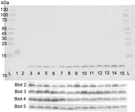 Western blot reactivity of rabbit antisera (1/400 dilution) with ACP in lysates of meningococcal strains. Lanes L, protein markers; lane 1, rACP (0.1 µg); lane 2, MC58 ΔACP (20 µg); lanes 3 and 4, MC58 and MC168 (type 1; 20 µg); lanes 5 to 14, L2470, MC54, MC161, MC162, MC172, MC173, MC174, MC179, MC180, and MENC11 (type II; 20 µg); lane 15, MC90 (type III; 20 µg). Similar reactivities for all strains were observed with four additional and independent blots of the same samples.