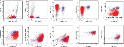 Flow cytometry analysis of the pleural fluid.Notes: Blasts are shown in red, and lymphocytes are shown in blue. Blasts were CD45+/−, CD3−, CD7++, CD5+, CD2−, CD34+/−, CD1a−, CD3Cy+, and TdTCy+.Abbreviations: SSC, side scatter cells; FITC, fluorescein isothiocyanate; CD3, surface CD3; CD3Cy, cytoplasmic CD3; TdTCy, cytoplasmic TdT.