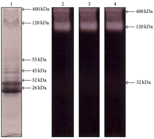 Electrophoretic detection of bands with proteolytic activity in TES of T. canis at different pH values.Samples of TES were loaded at a quantity of 10 μg/well in slab gels of 10% (w/v) acrylamide copolymerized with 0.1% (w/v) gelatin. After electrophoretic separation, proteinase activity was developed using acetate buffer (pH 5.5, lane 2), phosphate buffer (pH 7.6, lane 3), or glycine buffer (pH 9.0, lane 4) and then gels were stained with Coomassie blue. In other assays, electrophoresis of TES was performed in 10% (w/v) acrylamide gels and protein bands were directly stained with Coomassie blue (lane 1). Molecular weight of bands with gelatinolytic activity is indicated at the right of the corresponding lanes.