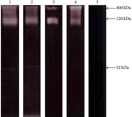 Proteolytic activity of TES components of T. canis analyzed by acrylamide-gelatin gel electrophoresis. Effect of proteinase inhibitors. TES components were preincubated for 30 min at RT with one of the following compounds: control without inhibitor (lane 1); 2 μM trans-epoxysuccinyl-L-leucylamido(4-guanidino)-butane (E64) to identify cysteine proteinases (lane 2); 0.1 μM pepstatin A for aspartic proteinases (lane 3); 1 mM ethylenediaminetetraacetic acid (EDTA) for metalloproteinases (lane 4); and 0.1 μM leupeptin for serine proteinases (lane 5). Samples (10 μg/well) were electrophoretically separated in slab gels of 10% (w/v) acrylamide copolymerized with 0.1% (w/v) gelatin. Proteinase activity was developed using phosphate buffer (pH 7.6) and then gels were stained with Coomassie blue. Molecular weight of bands with activity is indicated at the right.