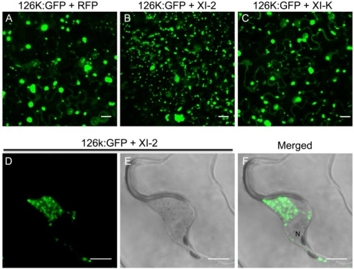 Inhibition of myosin XI-2 disrupts the normal subcellular localization of expressed 126k:GFP.A, co-expression of 126k:GFP together with RFP. The 126k:GFP accumulates in large aggregates. B, co-expression of 126k:GFP together with myosin XI-2 tails. 126k:GFP is dispersed into numerous small aggregates. C, co-expression of 126k:GFP together with myosin XI-K tails. The 126k:GFP accumulates in large aggregates similar to those seen upon expression of RFP. Similar normal aggregates are seen also upon co-expression of the 126k:GFP with either XI-F, VIII-1, VIII-2 or VIII-B tails. D-F, co-expression of the 126k:GFP together with myosin XI-2 tails. The 126k:GFP accumulates, in addition to small aggregates, in a big aggregate in the vicinity of the nucleus. A-F, proteins were expressed by co-agroinfiltration and observed at 2 dpa. Scale bars, 20 µm (A-C); 10 µm (D-F).