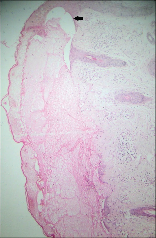 Subepidermal bulla with fibrosis beneath it, black arrow demonstrates the site of blistering (H and E, ×10)