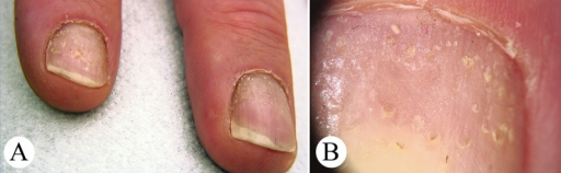 Pitted nails in a patient with atopic eczema. (A) Overview. (B) Dermatoscopy. Dermatoscopically, small, circular punctate depressions within the nail plate are discernable. (Copyright: ©2014 Haenssle et al.; first published in Der Hautarzt, 2014, 65(4):301–11.)
