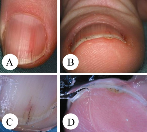 Onychopapilloma. (A–B) Overview. (C–D) Dermatoscopy. Longitudinal erythronychia that does not continuously involve the whole nail but that leaves an unaffected interval at the proximal nail matrix. Few reddish-black streaks represent hemorrhages and serous inclusions with yellowish background pigmentation. Dermatoscopy of the distal nail margin reveals the typical rough verrucous surface of a wedge-shaped notch with red-black dots. (Copyright: ©2014 Haenssle et al.)