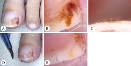 Artificial discoloration of the nail by staining of moist leather shoes. (A) Overview. (B–C) Dermatoscopy. The dermatoscopic examination of the distal free nail edge in (C) clearly shows the superficial location of the pigment. (D–E) Artificial nail discolorations may usually be easily removed with a scalpel. (Copyright: ©2014 Haenssle et al.; first published in Der Hautarzt, 2014, 65(4):301–11.)