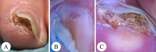 Bowen's disease beneath the distal nail margin with accumulation of parakeratotic material. (A) Overview. (B) Dermatoscopy of the nail surface and (C) the distal nail edge. In this slightly pigmented keratotic tumor distal onycholysis and subungual hemorrhage are visible. Differentiation from verruca vulgaris is very difficult since a number of characteristic criteria are present (yellowish, rough to verrucous surface with brown-red streaky hemorrhages). (Copyright: ©2014 Haenssle et al.)