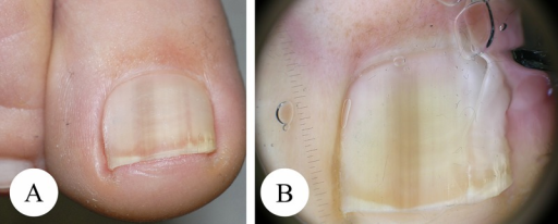 Ethnic lentigo of the right great toenail. (A) Overview. (B) Dermatoscopy. Dermatoscopically there is a homogeneous gray-ish-pale longitudinal melanonychia affecting the whole nail with a slightly diffuse demarcation of the lateral margin. (Copyright: ©2014 Haenssle et al.; first published in Der Hautarzt, 2014, 65(4):301–11.)