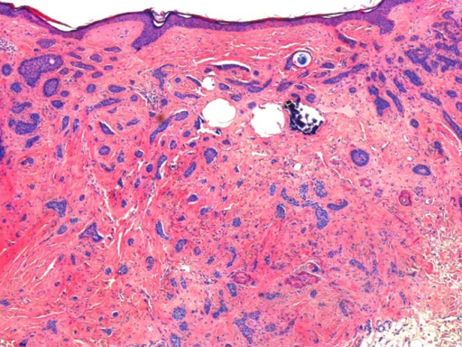 Intermediate power image shows superficial follicular differentiation with cysts and calcification, and more infiltrative deep component. (Copyright: ©2014 Inskip, Magee.)
