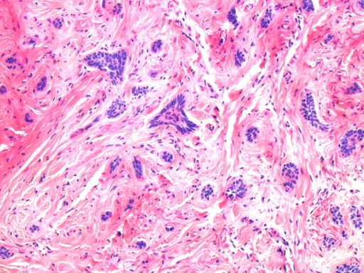 High power of basaloid infiltrative aggregates in deeper portion of tumor. (Copyright: ©2014 Inskip, Magee.)