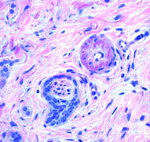 Focus of perineural invasion in deeper portion of tumor. (Copyright: ©2014 Inskip, Magee.)