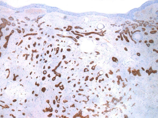 Ber-Ep4 stain is strongly positive. This finding is not specific as Ber-Ep4 is positive in basal cell carcinoma. One study showed Ber-Ep4 positivity in 38% of microcystic adnexal carcinomas, 57% of desmoplastic trichoepitheliomas, 100% of basal cell carcinomas, and 38% of squamous carcinomas [6]. (Copyright: ©2014 Inskip, Magee.)