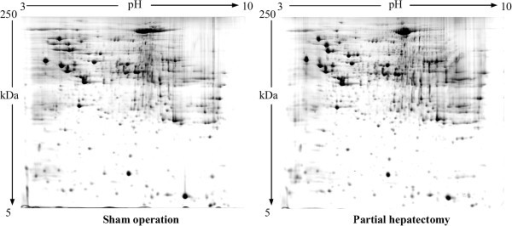 Representative 2-DE maps of rat liver tissues corresponding to sham operation group (left) and PH group (right) at 24 hour after PH. Protein spots were stained with colloidal Coomassie stain. The 2-DE was repeated at least three times for each group.