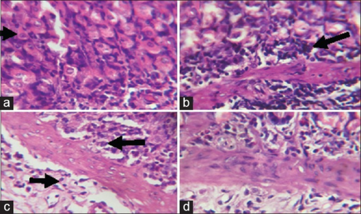 Photomicrographs showing the gastric mucosa of (a) control rats with predominantly normal parietal cells (black arrow) with only few inflammatory cells; (b) Sodium arsenite-treated rats, showing marked infiltration of the mucosa and submucosa with inflammatory cells; (c) rats pretreated with Kolaviron (KV) 100 mg/kg and (d) rats pretreated with KV 200 mg/kg, both showing only mild infiltration at the base of the mucosa