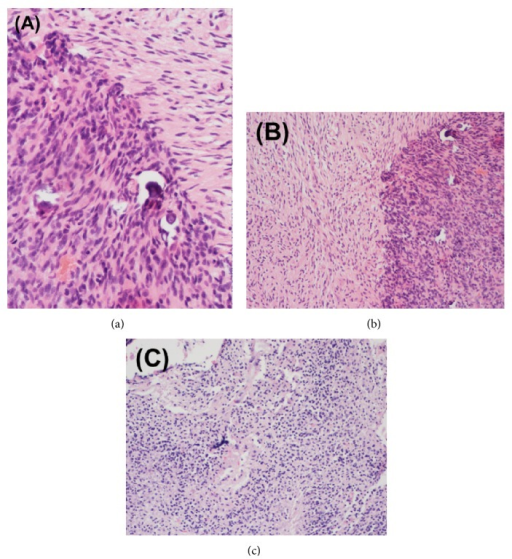 Surgical pathological specimens from (a) initial craniotomy and (b-c) repeat craniotomy for recurrent intracranial disease. Histopathological analysis of the initial (a) right temporal lobe specimen demonstrated glioblastoma with small cell features. The pathological specimen after second resection (b) demonstrated active glioblastoma, almost entirely viable with <5% necrosis. Following the third and final (c) craniotomy for locally recurrent disease, predominantly viable (approximately 15% necrosis) active glioblastoma was identified. Molecular studies were negative for MGMT methylation and EGFR amplification was detected by FISH.